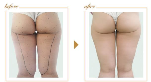 脂肪吸引前と後の症例写真の画像です。